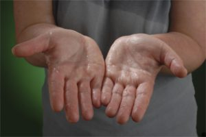 Hyperhidrosis UK - Sweaty Hands
