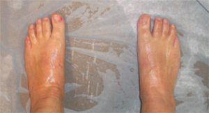 Hyperhidrosis UK - Sweaty Feet